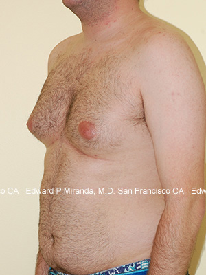 Gynecomastia Before & After Image