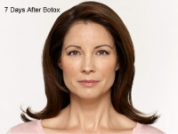Dermal Fillers Before & After Image