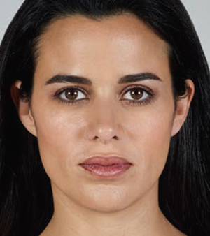 Juvederm Before & After Image