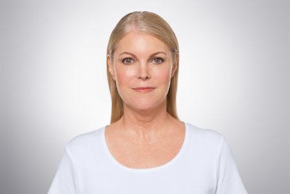 Kybella Before & After Image