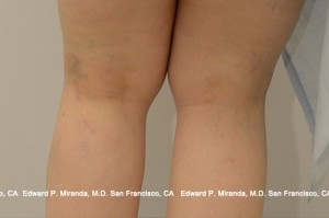 Sclerotherapy Before & After Image