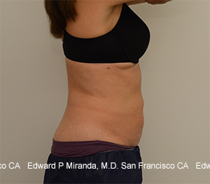 Coolsculpting Before & After Image