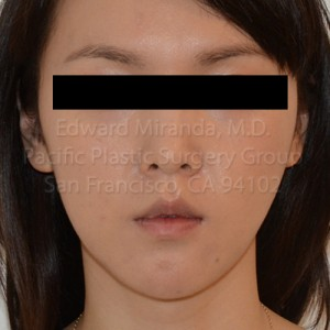 Jaw Reduction Before & After Image